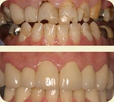 Cosmetic Dental Treatments - John R. Carson, D.D.S., P.C. | Cosmetic, Preventive, Restorative Dentist in Tucson