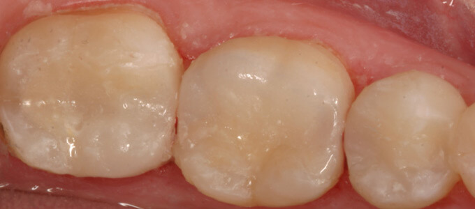Dental Fillings- After | Cosmetic, Preventive, Restorative Dentist in Tucson