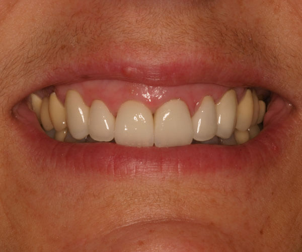 Dental Treatments – After | Cosmetic, Preventive, Restorative Dentist in Tucson