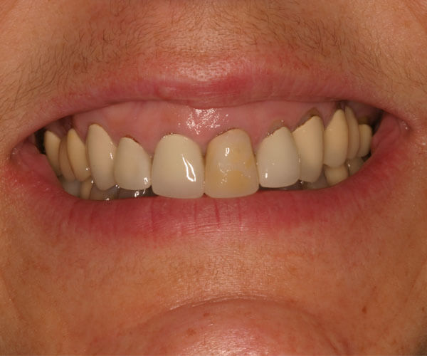 Dental Treatments – Before | Cosmetic, Preventive, Restorative Dentist in Tucson