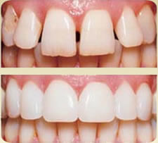 Porcelain Veneers Before and After - John R. Carson, D.D.S., P.C. | Cosmetic, Preventive, Restorative Dentist in Tucson