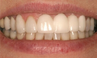 Teeth Repair – After | Cosmetic, Preventive, Restorative Dentist in Tucson