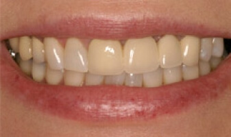Teeth Repair – Before | Cosmetic, Preventive, Restorative Dentist in Tucson
